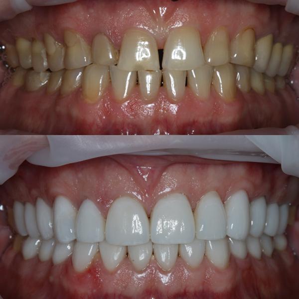 Лаборатория улыбок МОНОПОЛИЯ, виниры на зубы, виниры, люминиры, виниры до после