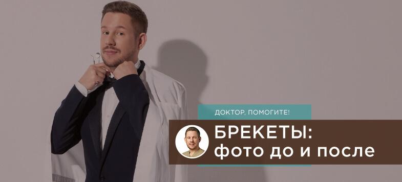 брекеты фото до после, Лаборатория улыбок, Лаборатория улыбок МОНОПОЛИЯ, Денис Козлов