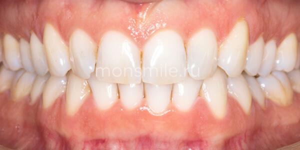 Профессиональная чистка зубов фото до после, Лаборатория улыбок, Лидия Адащик
