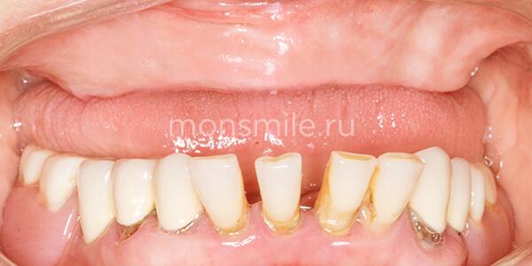 Имплантация зубов фото до после, протезирование зубов фото до после, Лаборатория улыбок, Денис Козлов, Лидия Адащик, Артем Кочканян
