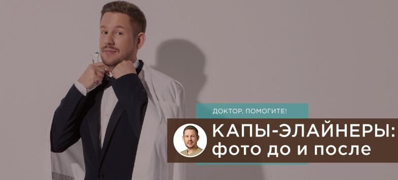 Элайнеры капы фото до после, Лаборатория улыбок, Денис Козлов