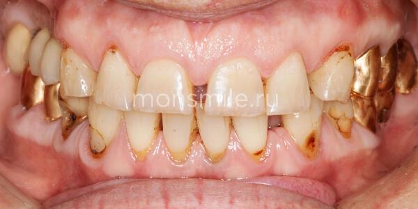 Имплантация зубов фото до после, протезирование зубов фото до после, Лаборатория улыбок, Денис Козлов, Вера Свиридова, Артем Кочканян