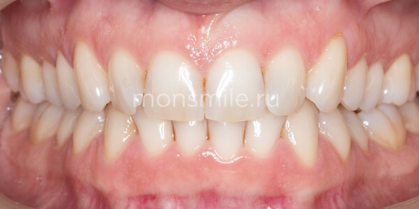 Отбеливание Zoom4 фото до после, отбеливание зубов, Лаборатория улыбок, Лидия Адащик