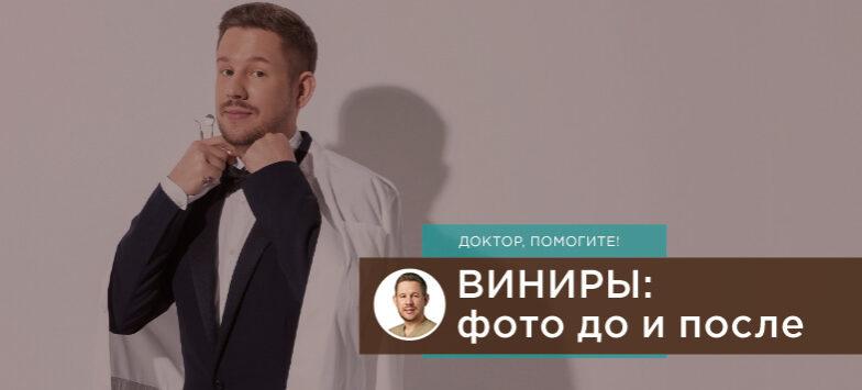 Виниры фото до после, Лаборатория улыбок, Денис Козлов
