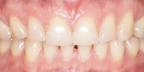 Отбеливание Zoom4 фото до после, отбеливание зубов, Лаборатория улыбок, Вера Свиридова