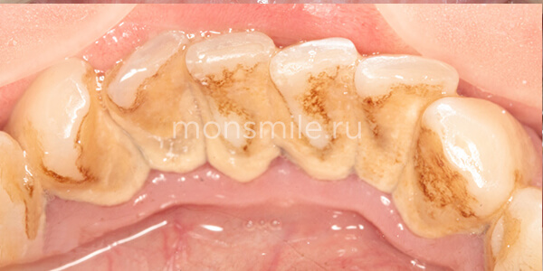 Профессиональная чистка зубов фото до после, Лаборатория улыбок, Вера Свиридова